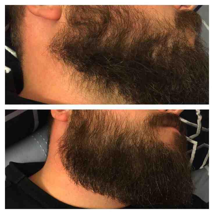 Quand le poil arrête de pousser ?